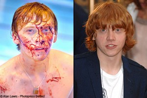 A right mess Rupert is left bloodied compared to his normal boyish self